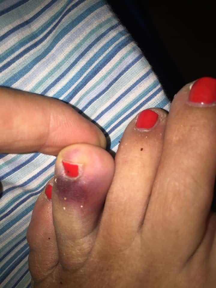 Ladispoli, si ferisce al piede con lo spuntone nei pressi della battigia